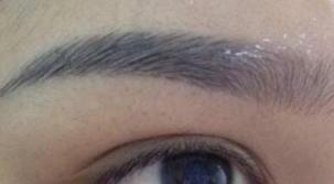 眉毛大量脱落是怎么回事 合肥光美整形医院眉毛种植好吗