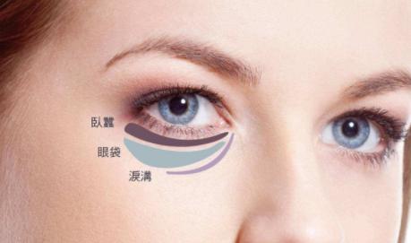 眼袋手术能祛眼袋吗 南京美范整形医院去眼袋多少钱