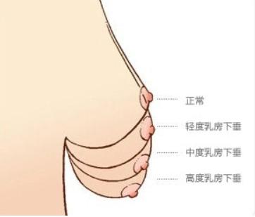 徐州中美强华整形医院做胸部整形好吗  乳房下垂矫正贵吗