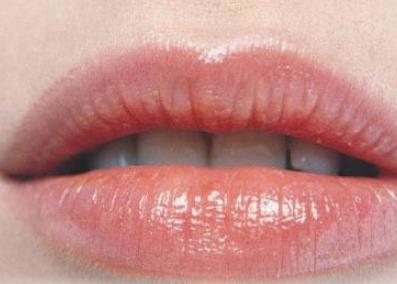 唇裂修复术什么时候做最好 威海福神整形可以做唇裂修复吗