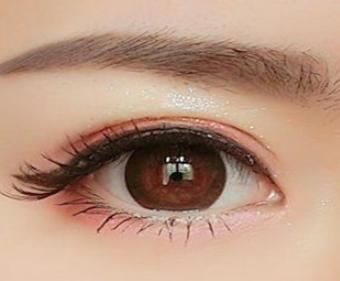 如何有效去除黑眼袋 临沂泉美整形去眼袋优势