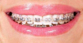 牙齿矫正有哪些方法 郑州艾媚尔医疗美容整形医院