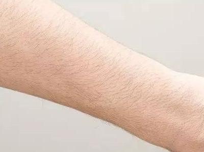 激光手臂脱毛的价格 南通康颜整形医院还你洁白美臂