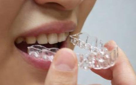 宁波口腔医院<font color=red>牙齿矫正</font>戴牙套得多少钱 需要戴多久