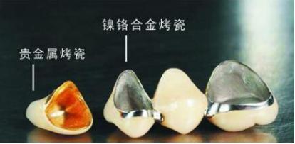 上海中博口腔医院做<font color=red>烤瓷牙</font>优惠 效果怎样