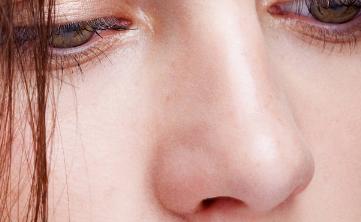 鼻尖整形手术效果如何 东莞依谋整形医院鼻尖整形多久恢复