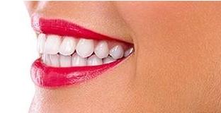 矫正牙齿多少费用 东莞王晓杰整形医院矫正牙齿价格