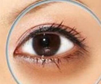 长期的黑眼圈怎么去除 济南艺星激光去黑眼圈效果如何