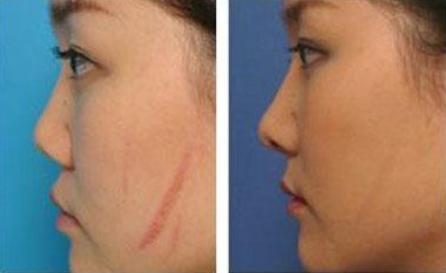温州第三人民医院整形外科像素激光祛疤安全吗 效果怎样