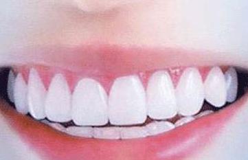 矫正牙齿有没有后遗症 深圳兰乔整形医院牙齿矫正要多久