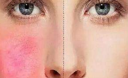 脸上有红血丝怎么办 一个方法让你彻底告别苹果脸