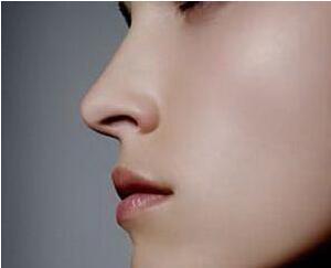广州第一人民医院整形科隆鼻手术的费用 假体隆鼻打造无痕