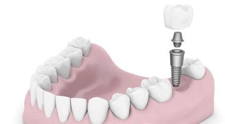 绍兴京韩口腔医院种植牙的优点 材料有哪些