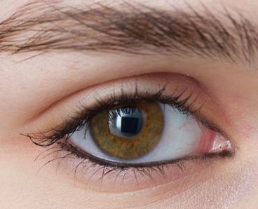 割双眼皮修复价格 揭阳华美整形医院双眼皮修复效果好吗