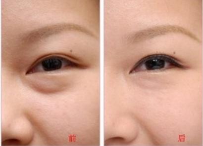 台州去眼袋哪家好 台州温岭整形医院激光祛眼袋效果好吗