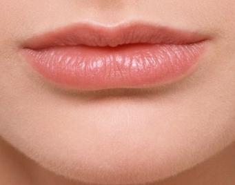 唇腭裂修复手术的效果 佛山亚韩整形医院唇裂修复效果好吗