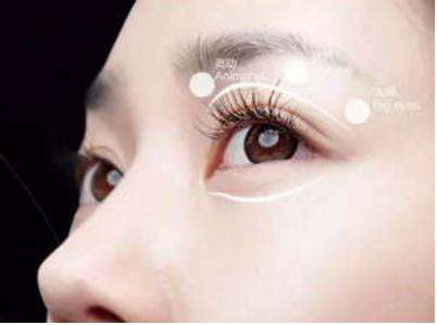 郑州割双眼皮价格 郑州割双眼皮让眼睛更迷人