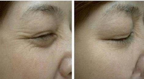 宁波陈标新整形医院激光眼尾纹除皱价格 让肌肤更年轻