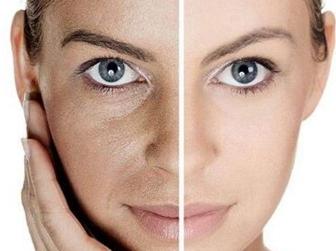 常州美贝尔整形医院E光嫩肤的作用 能维持多长时间