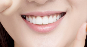三四岁的时候牙齿矫正是较好的 金华人民医院整形科优势