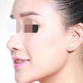 岳阳中医院整形科做鼻部再造效果好吗 给你漂亮鼻梁
