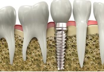 西安百思美口腔整形医院种植牙的寿命是多久  有哪些危害呢