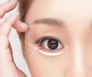 美容去眼袋哪种方法好 武汉逆龄整形医院激光去眼袋多少钱