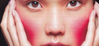 沈阳奥维丽整形医院彩光嫩肤祛红血丝改善您的红脸症