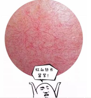 脸上的红血丝怎么消除 合肥刘大夫整形<font color=red>激光去红血丝</font>效果