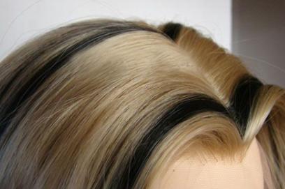 武汉雍禾植发医院疤痕植发的效果如何 选择技术种类多吗