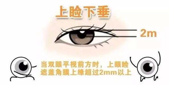 桂林美丽焦点整形医院做上眼睑下垂矫正多少钱