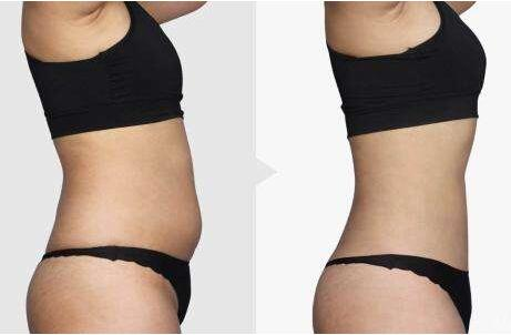 连云港美缔整形医院超声波吸脂减肥 给你性感好身材