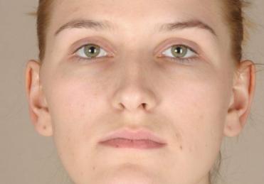 驻马店缔莱美整形做软骨隆鼻3个月后鼻子会更细致