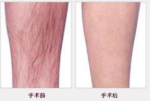 柳州工人医院做激光腿部脱毛术后怎样护理 还会再长吗