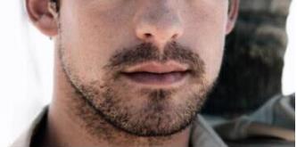 杭州碧莲盛无痕植发医院胡须种植 蜕变成熟型男