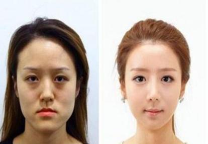 韩国女性整容前后对比图 完全就是脱胎换骨