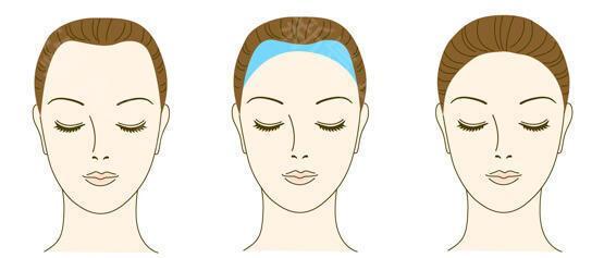 西安雍禾植发医院种植发际线 面部轮廓更具美丽