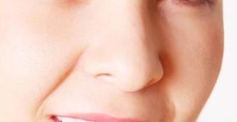 三门峡华美美容整形医院正规吗 鼻小柱延长术效果如何