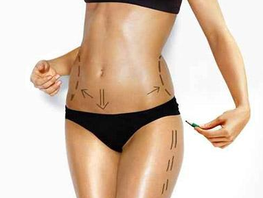 珠海新颜整形医院全身吸脂减肥手术方法 术后多久能恢复