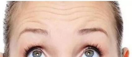 汕头晴颜整形医院激光去除抬头纹的优点 效果能维持多久