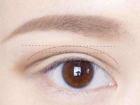 男士割双眼皮贵不贵 无锡哪家整形美容医院专业