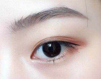 昆明梦想整形医院眉毛种植的效果 让您拥有自然的眉毛