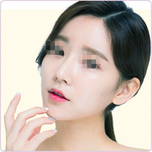 北京沈玲伟业整形医院手术隆鼻多少钱 鼻部高挺更美丽