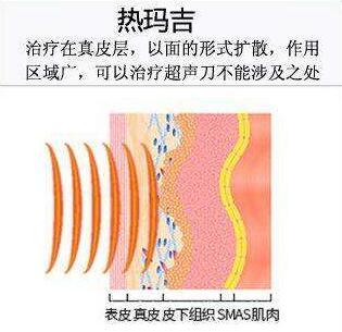 合肥福华整形医院热玛吉除皱的优势有哪些  除皱价格表