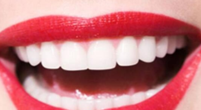 济宁丽珍整形医院烤瓷牙的优点 给您一口洁白整齐的牙齿