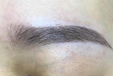 隆眉弓手术多久恢复 杭州千晴医疗美容整形医院隆眉价格
