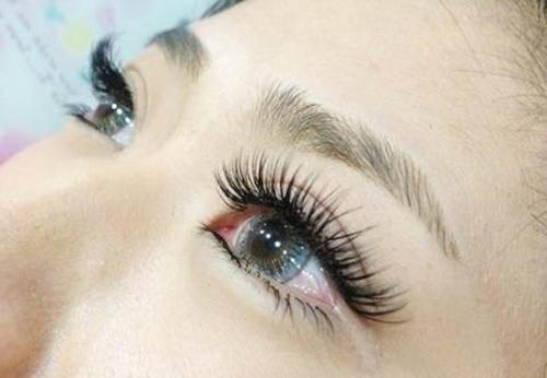 苏州同济医院整形科双眼皮整形价格多少钱 让眼睛更加迷人