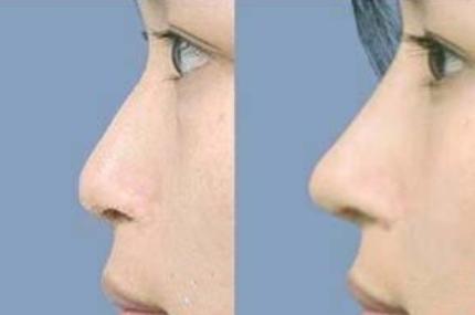 鼻子整形对比图 九江瑞丽整形医院<font color=red>假体隆鼻效果</font>自然吗