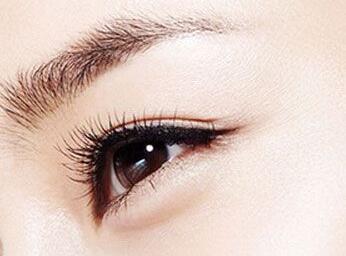 双眼皮类型图片 南京美范整形医院割双眼皮方法有哪些