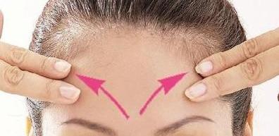 焦作金华整形医院电波拉皮去抬头纹效果 能维持多久呢